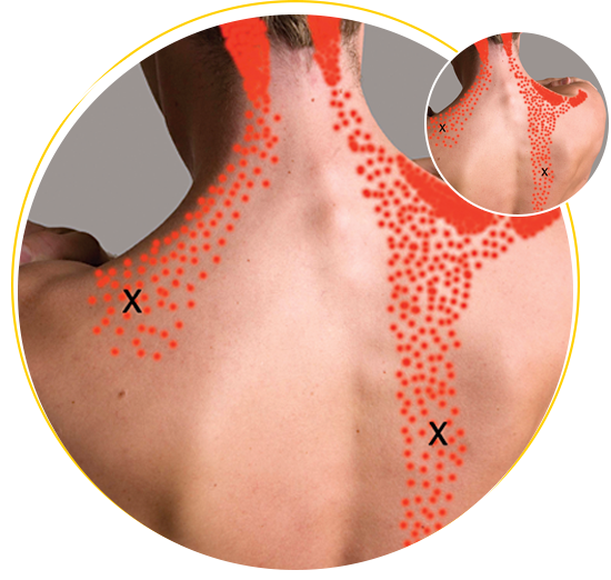 trigger point trapezious