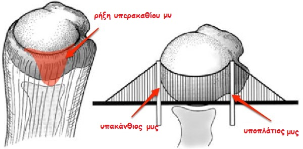 rotator-cuff-suspension-bridge1