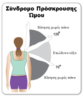 shoulder-impingement-syndrome-painful-arc