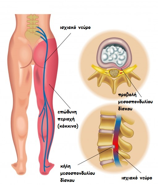 sciatic-pain1