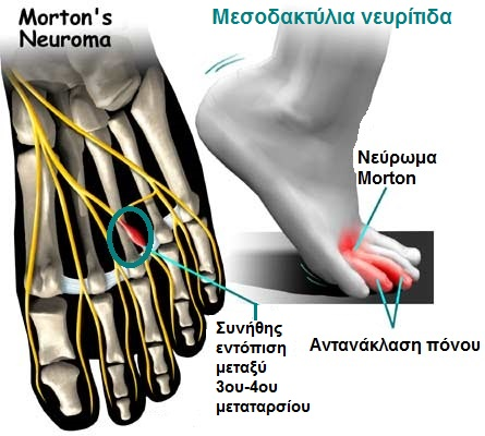 Mortons-interdigital-neuroma
