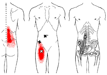 iliopsoas-referral-pain-pattern