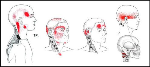 headache-trigger-point-diagram