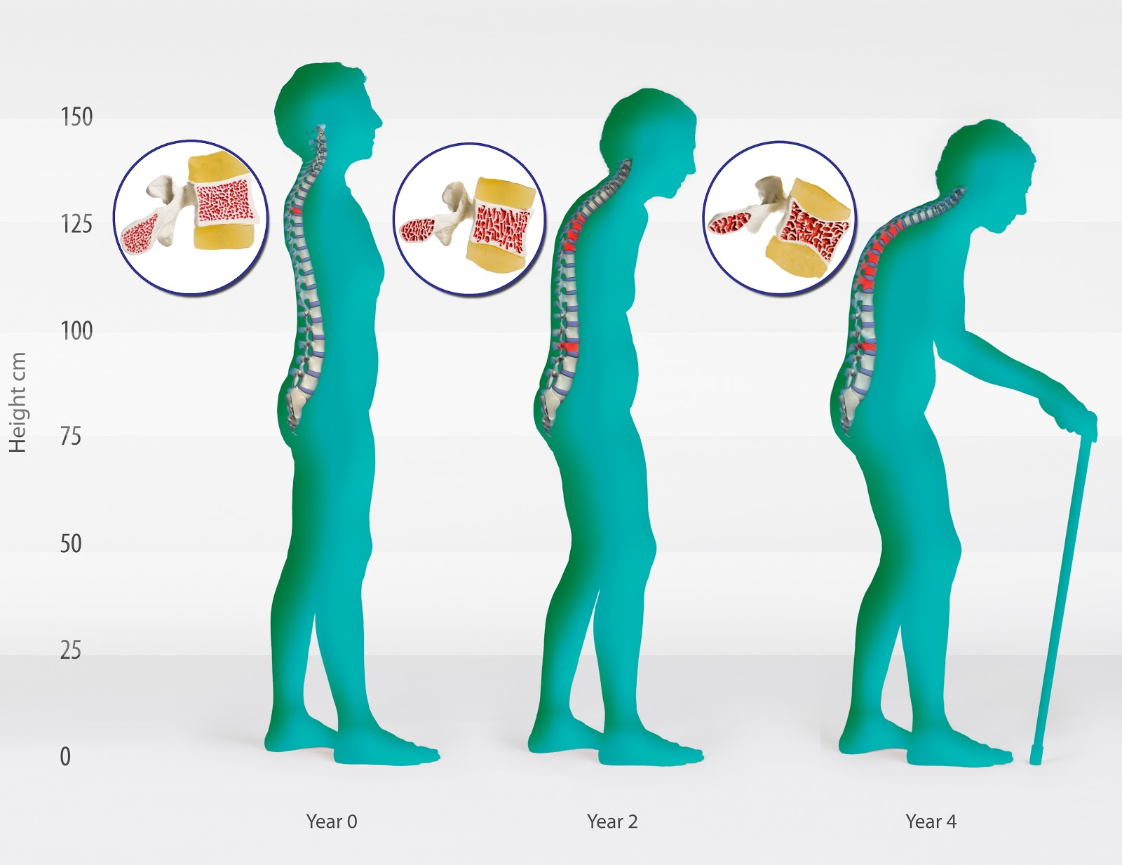 Osteoporosis Stages