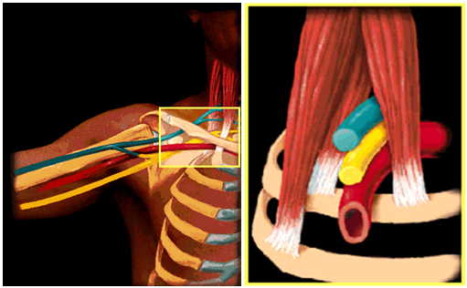 thoracic outlet syndrome 2