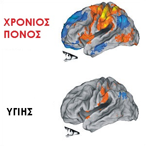 Chronic-pain-brain