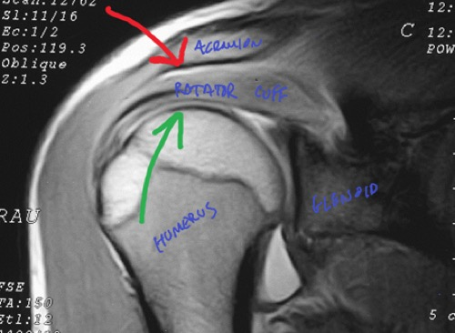 shoulder-impingement-assessment-and-treatment