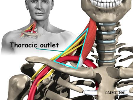 thoracic-outlet-syndrome-bloodxw